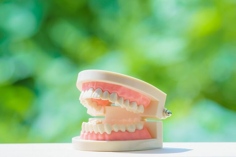 どのような入れ歯が必要か