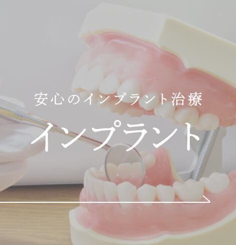 安心のインプラント治療 インプラント|神戸三宮谷歯科クリニック