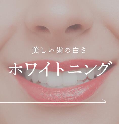 美しい歯の白さ ホワイトニング|神戸三宮谷歯科クリニック