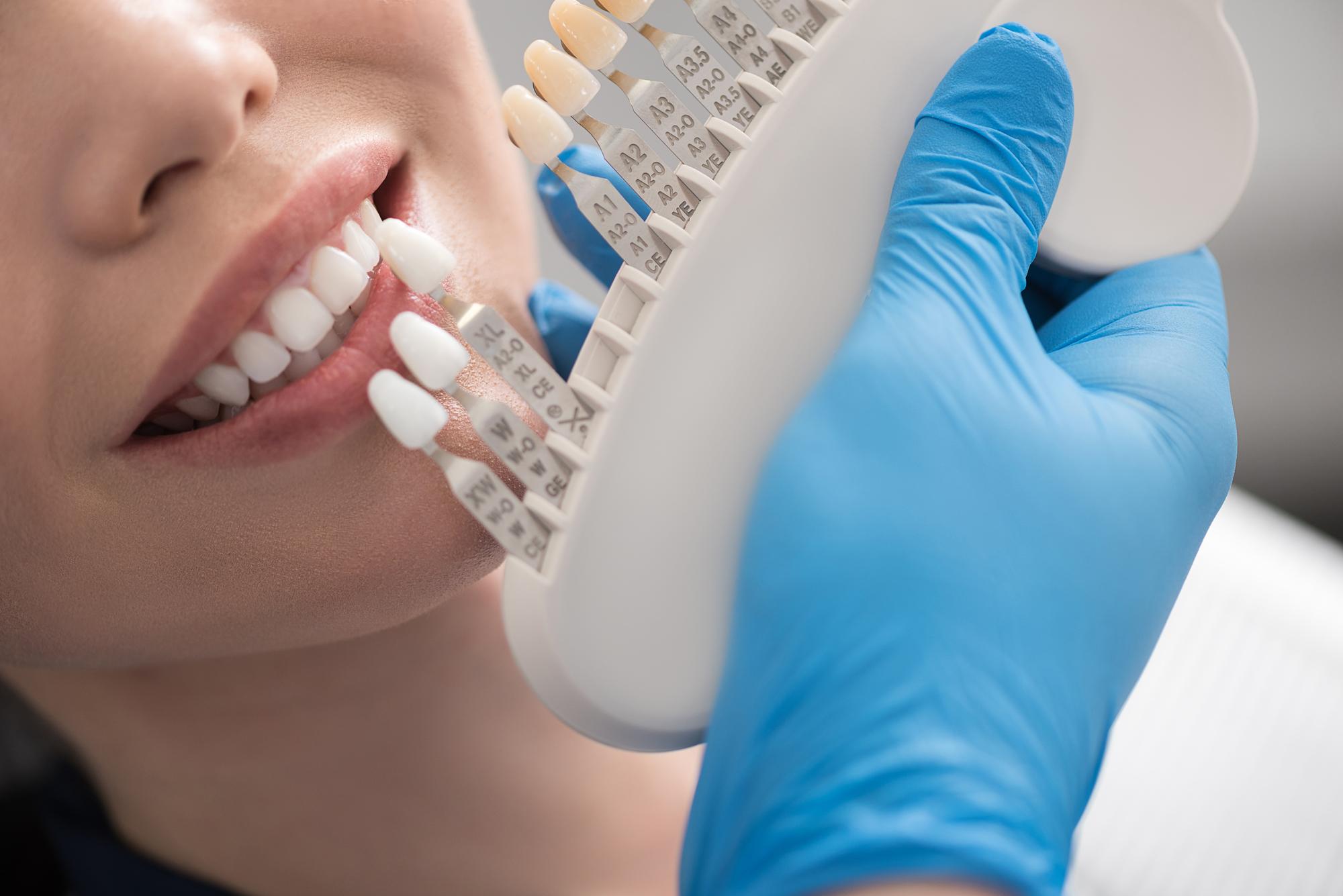 三宮谷歯科クリニックのホームホワイトニング