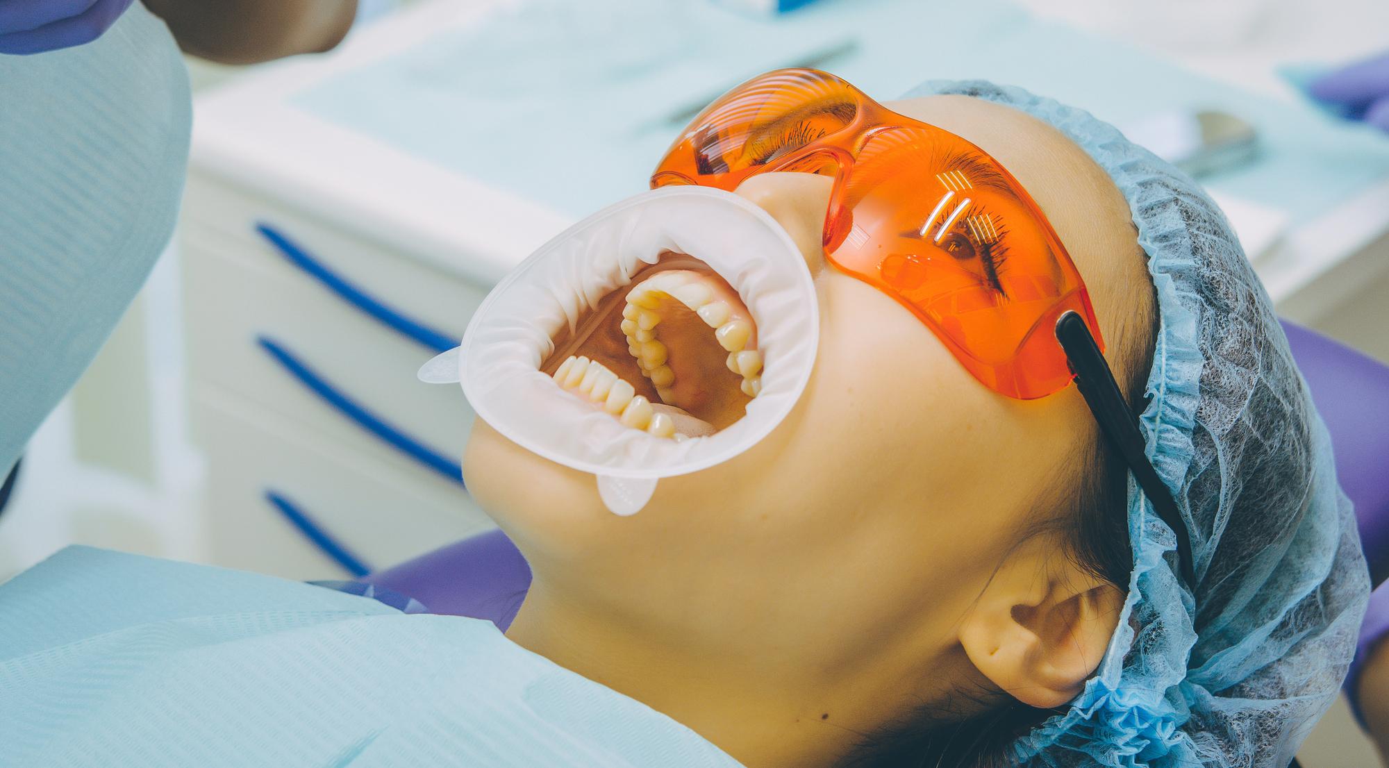 三宮谷歯科クリニックのオフィスホワイトニング
