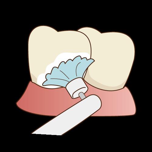 歯のクリーニング 歯石除去・歯石とりなら神戸三宮谷歯科クリニック