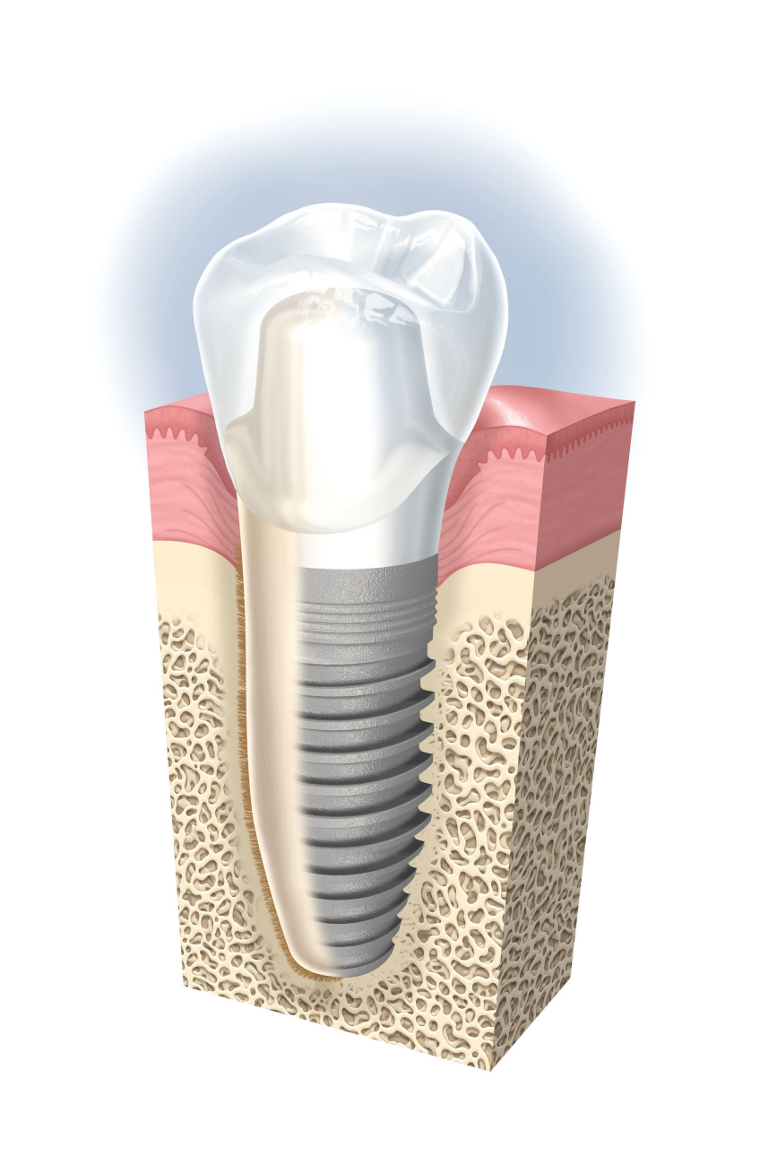 神戸三宮谷歯科クリニックでは、インプラント治療後より美しいセラミックを装着いたします
