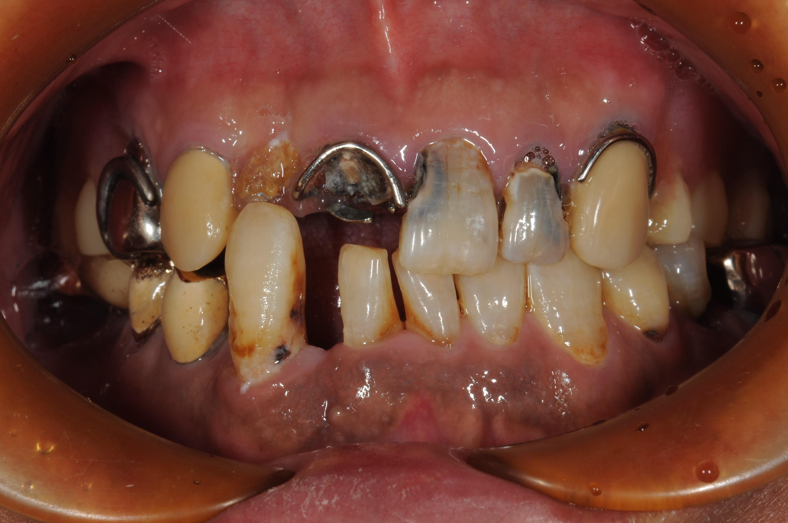 神戸三宮谷歯科クリニックでは、歯がボロボロの方でも安心して治療が出来ます