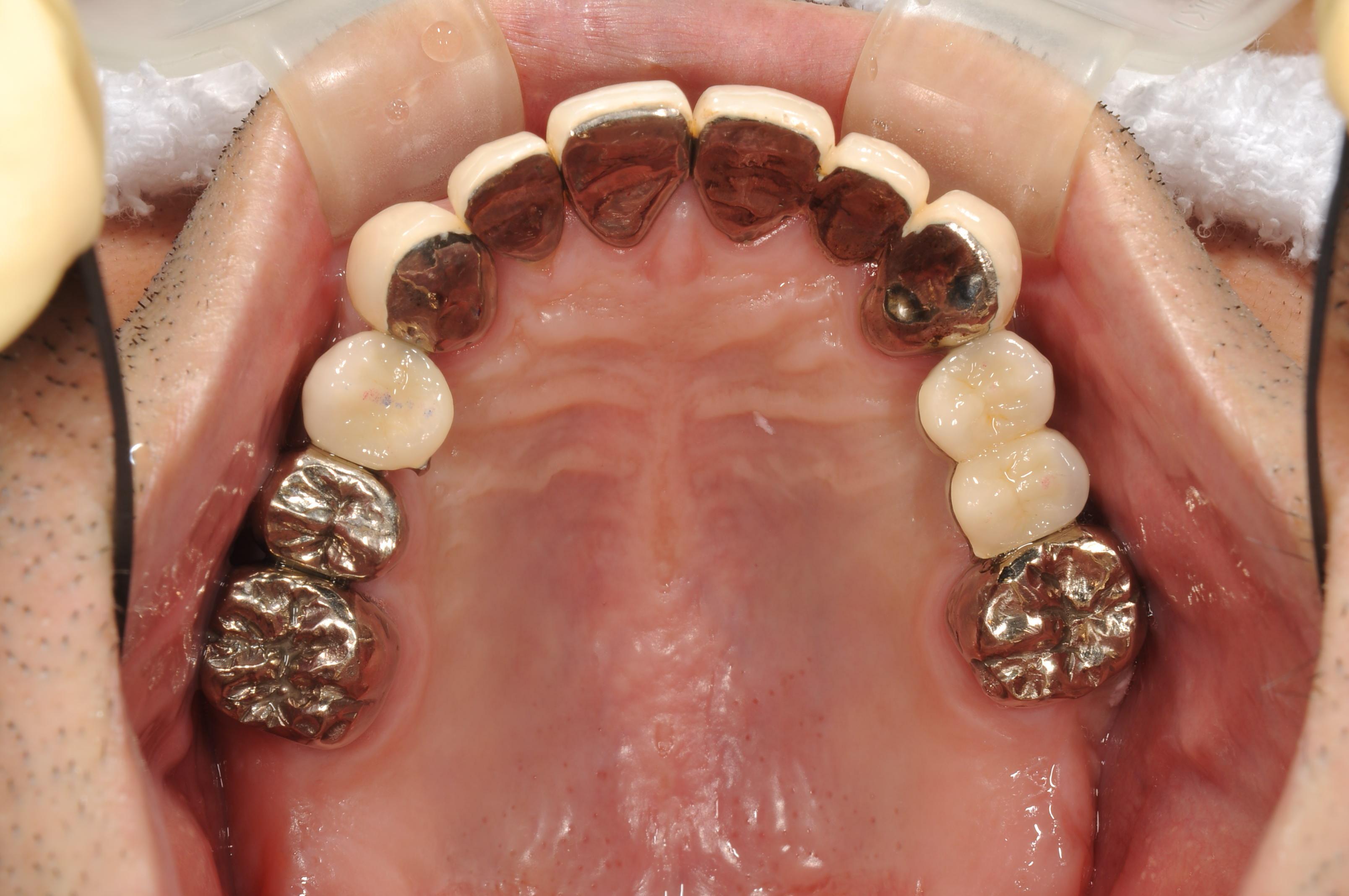 歯がボロボロになってしまった治療後2