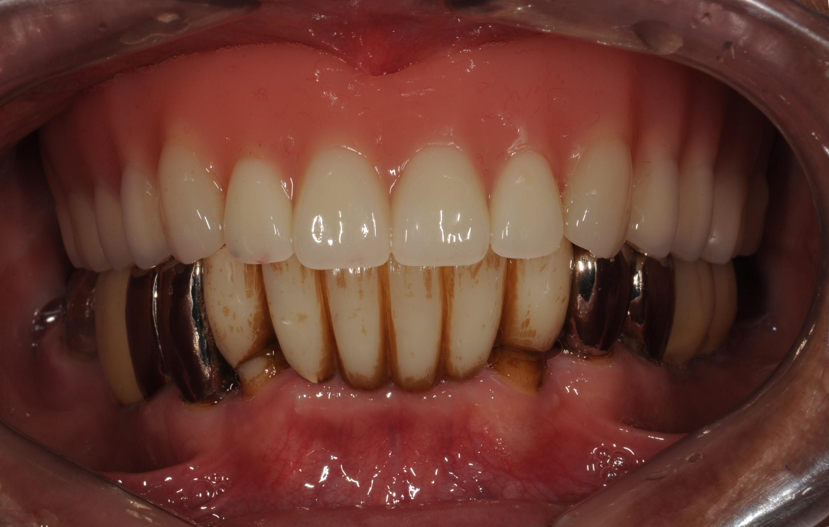 歯がボロボロになってしまった治療後4