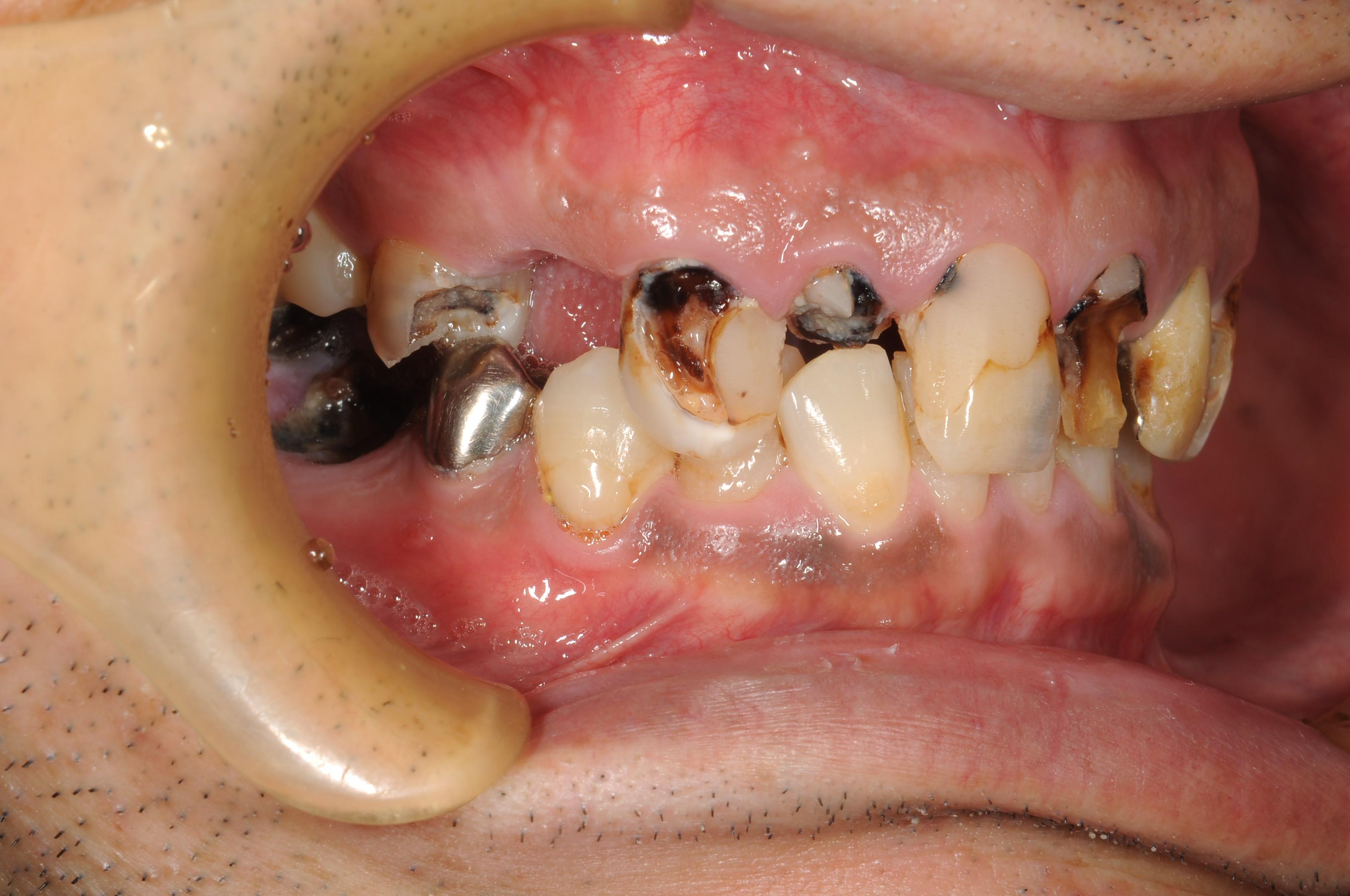 歯がボロボロになってしまった治療前3