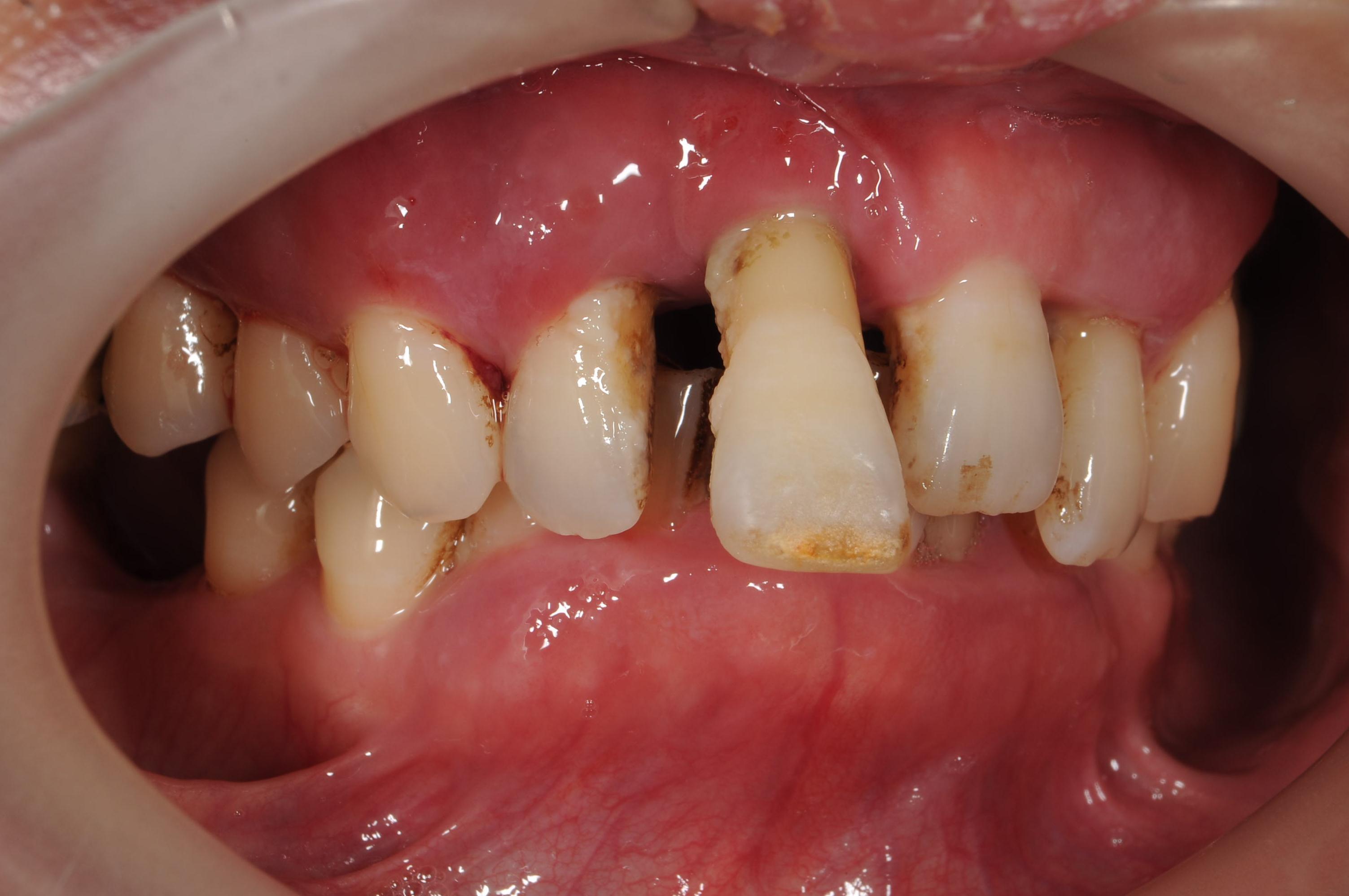 歯がボロボロになってしまった治療前6
