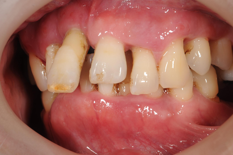 歯がボロボロになってしまった治療前4