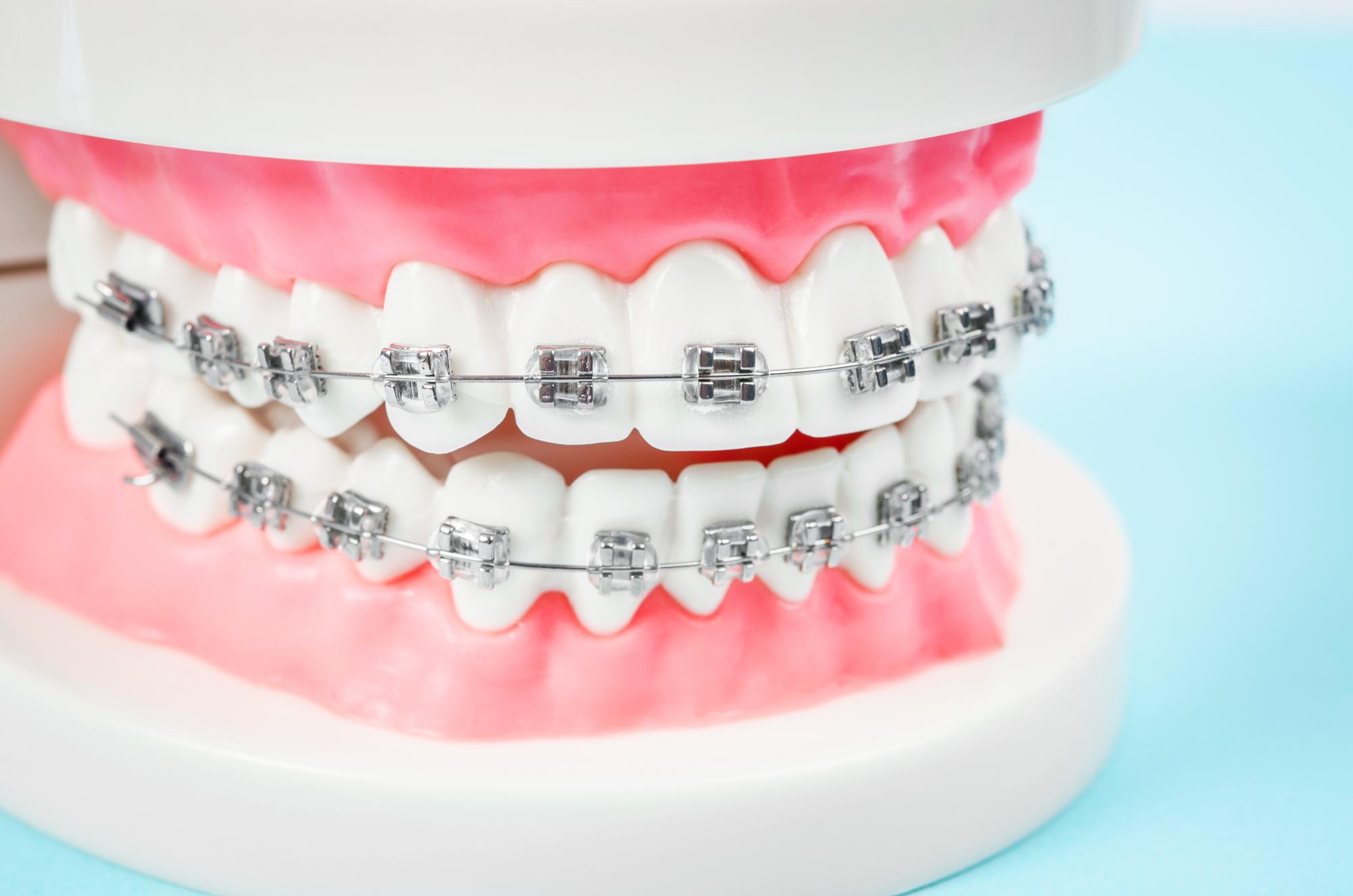 歯型採取装置・バンド装着後、ブラケットを装着して治療を開始いたします。
