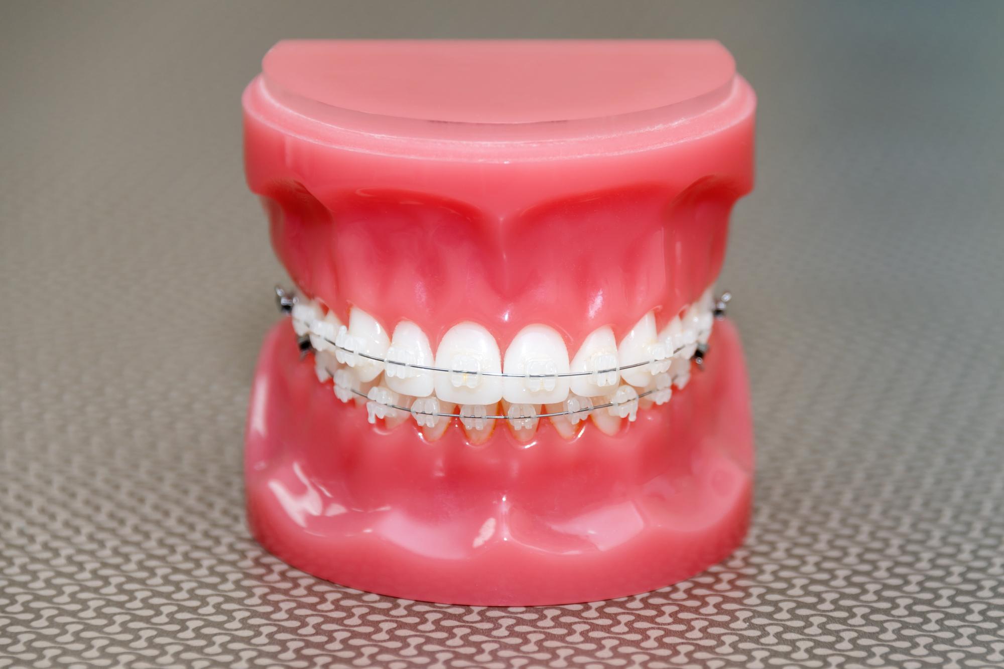 神戸三宮谷歯科クリニックではホワイトブラケットを使用した矯正治療が可能